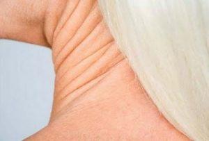 Boynunuzda oluşan kırışıklık ve çenealtı sarkmaları için