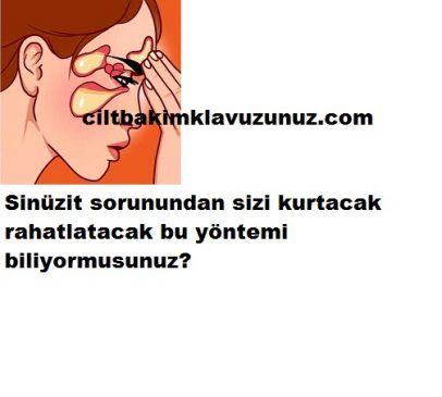 Read more about the article SİNÜZİT SORUNLARINI GİDEREN DOĞAL YÖNTEM