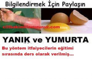 Yanık ve yumurta akı bilgilendirmek için paylaş