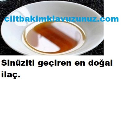 Read more about the article SİNÜZİTİ GEÇİREN EN DOĞAL İLAÇ
