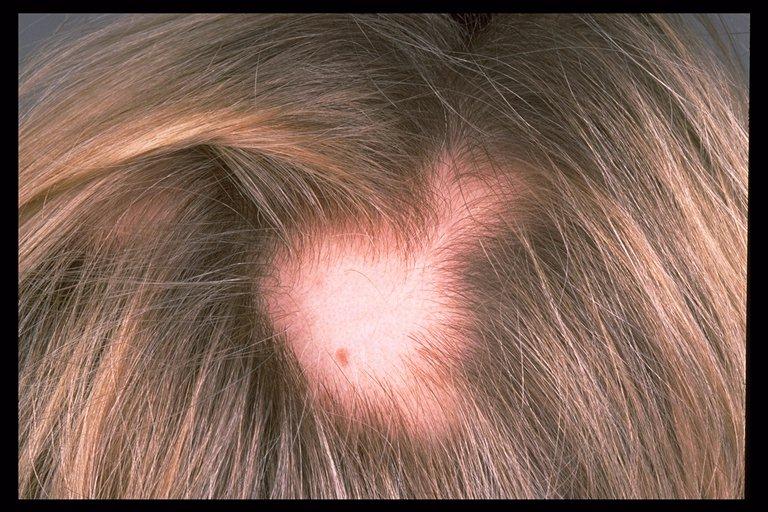 Saçkıran (Alopesi ) için evde doğal çözüm
