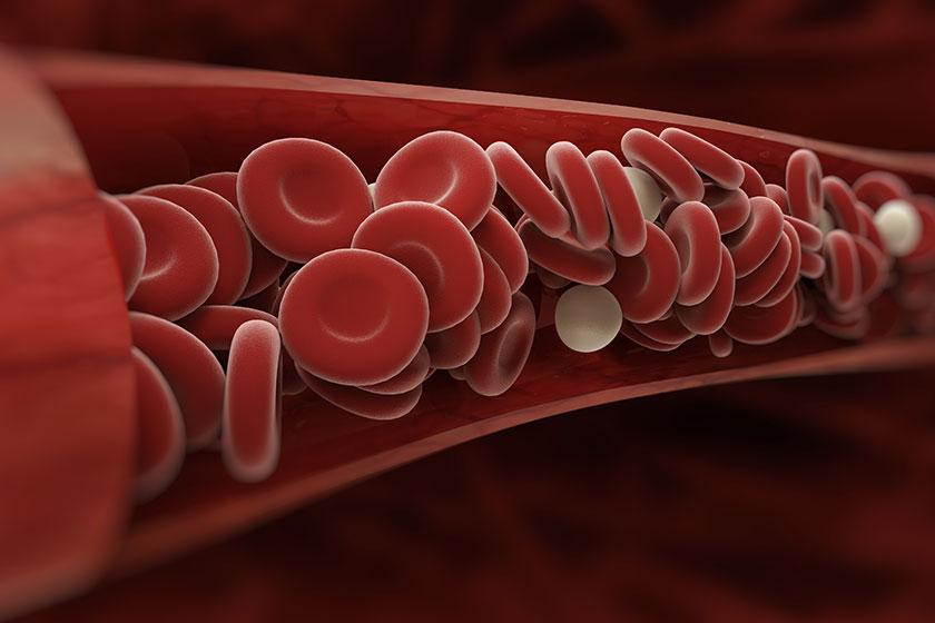 Kan pıhtılaşmasının belirtileri