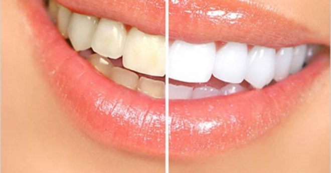 Read more about the article Doğal diş beyazlatıcı bu yöntemle dişleriniz  göz alacak